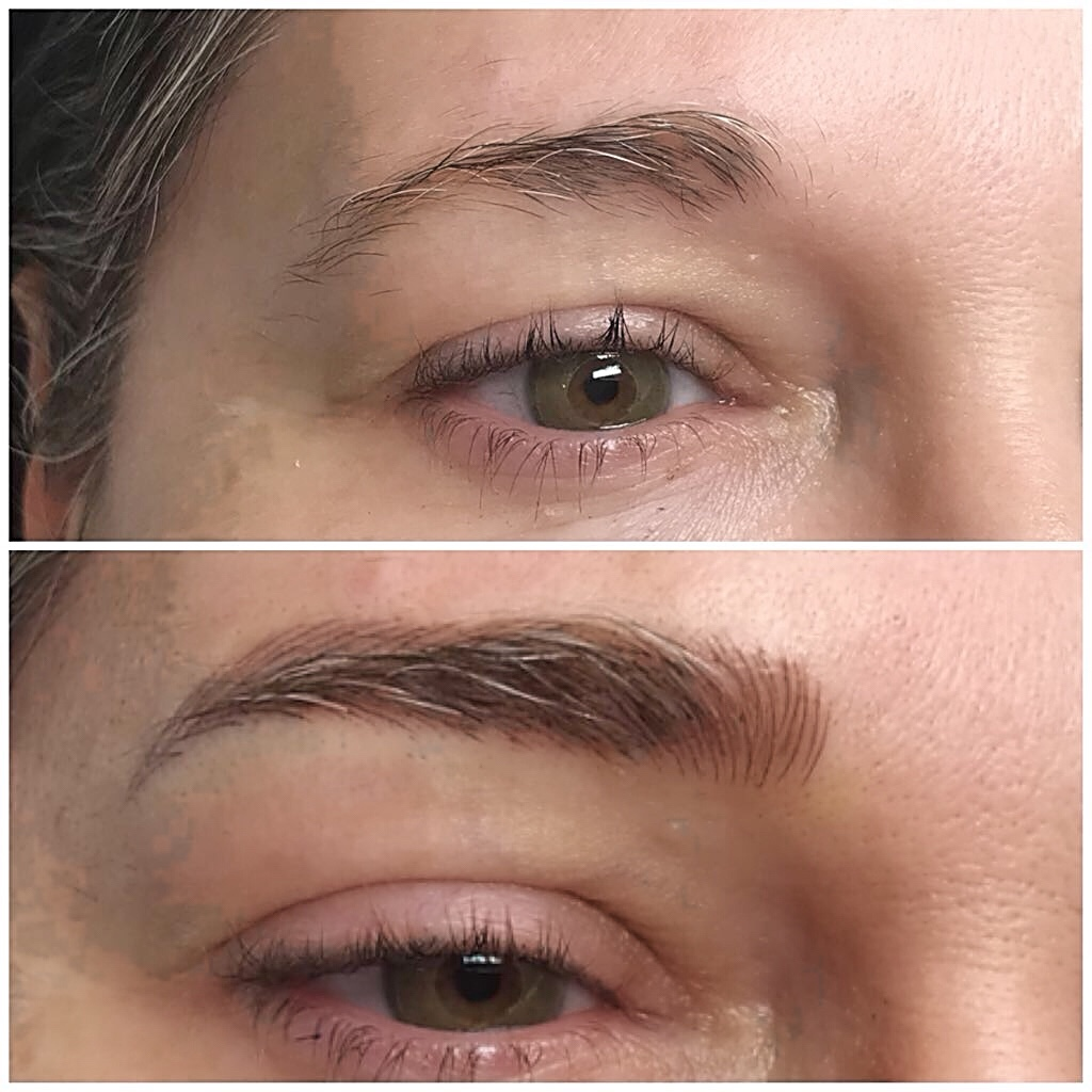 Brow Transformation Before and After